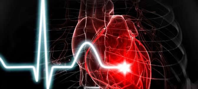 Coronary Artery Disease in African Americans