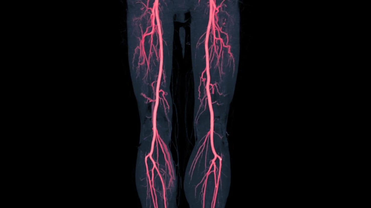 Improving Awareness of Peripheral Artery Disease