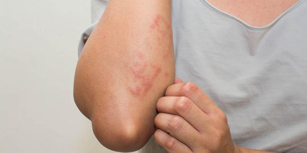 Atopic Dermatitis Tied to Autoimmune Diseases